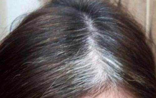 Cara Penggunaan Minyak Zaitun Untuk Rambut yang beruban
