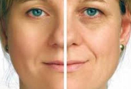Mengurangi Keriput Pada Wajah