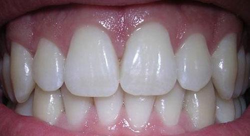Pemutih Gigi Alami