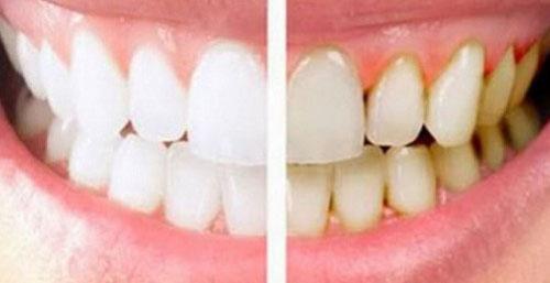 Cara Menghilangkan Gigi Kuning